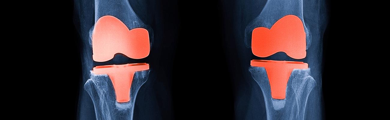 semne de artroză în tratamentul femeilor diagnosticul durerii de umăr