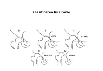 Tratament bilateral de displazie de șold la adulți