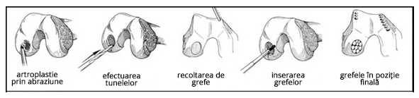 Osteoscleroza - cauze, simptome și tratament Tratamentul osteosclerozei articulației umărului