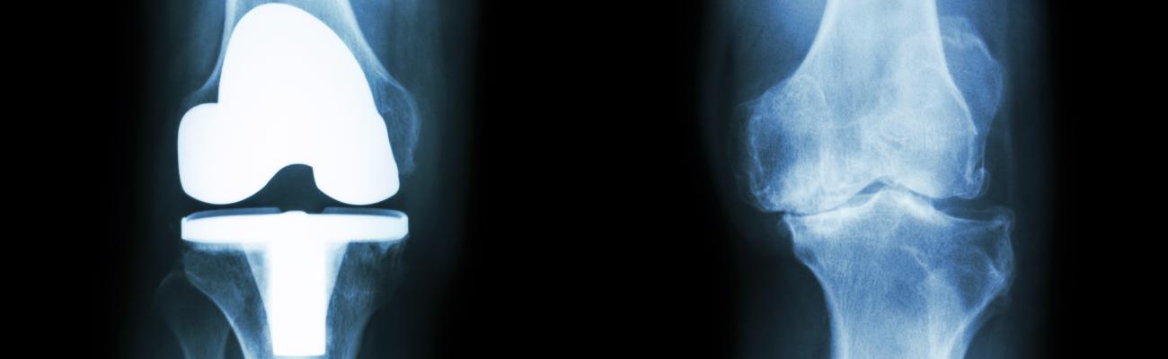 rigiditatea genunchiului